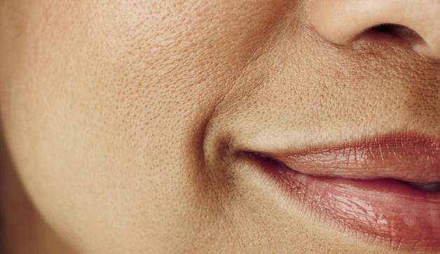 Kako umanjiti proširene pore na licu