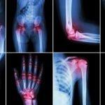 Zašto se javlja bol u zglobovima ruku i nogu i kakve su šanse za lečenje