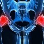 Bolovi u kukovima, leđima, nogama mogući uzroci