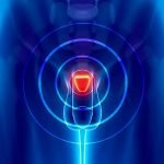 Benigno uvećanje prostate – simptomi, lečenje, vežbe