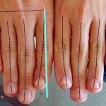 Artritis prstiju – ukočenost, deformacija, bol u zglobovima