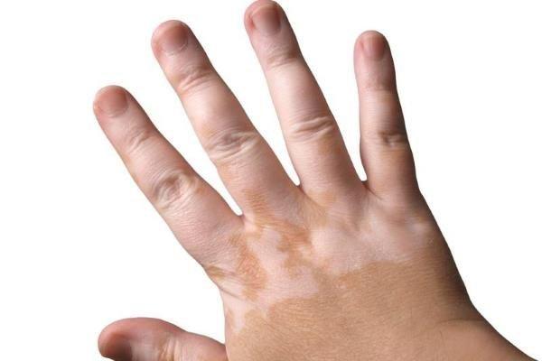 vitiligo kod dece