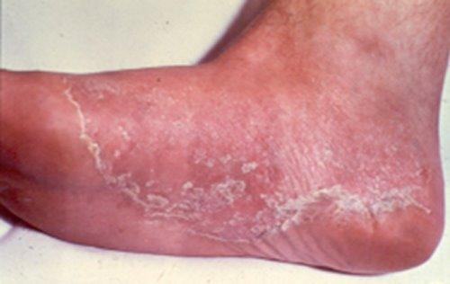 atletsko stopalo simptomi