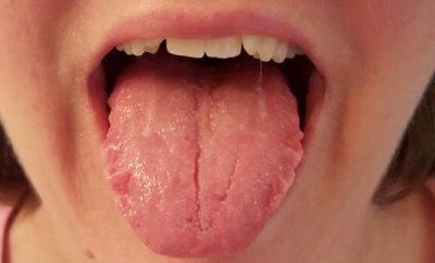 bolan jezik