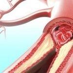 Čiscenje krvnih sudova i organizma od nikotina