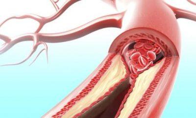 ciscenje krvotoka od nikotina