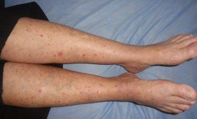 crvene tackice na nogama