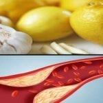 Kako očistiti krvne sudove prirodnim putem