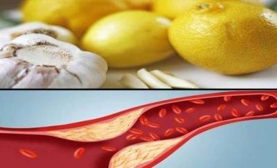 kako ocistiti krvne sudove od plaka