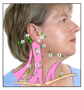limfni cvorovi na vratu