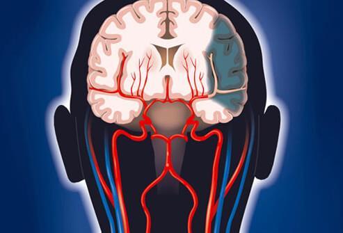 slaba cirkulacija u glavi