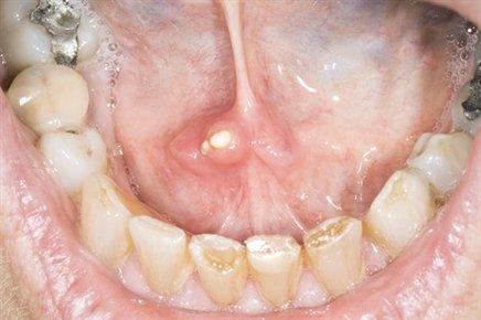 tumor pljuvacne žlijezde simptomi