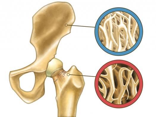 osteopenija bedrene kosti