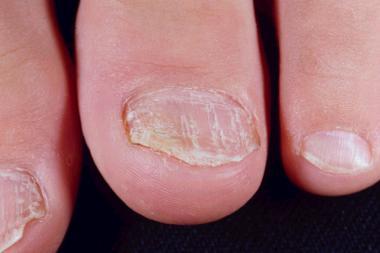 psorijaza noktiju na nogama