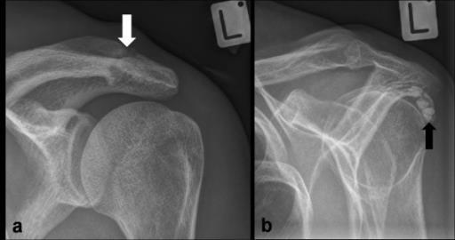 kalcifikat ramena