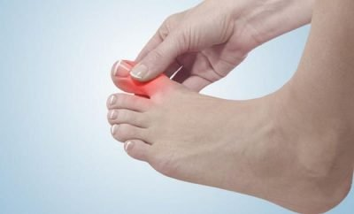 bol u palcu na nozi
