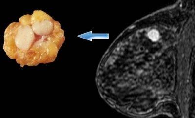 fibroadenom na dojci