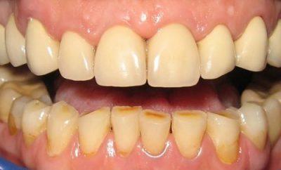 Skidanje kamenca sa zuba prirodnim putem