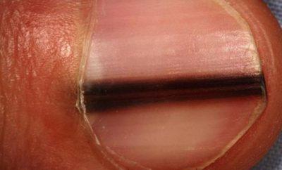 rak koze ispod nokta