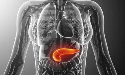 upala pankreasa