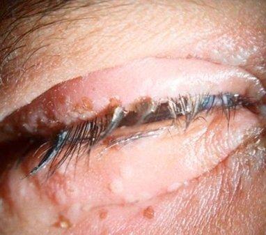 Herpes simpleks keratitis