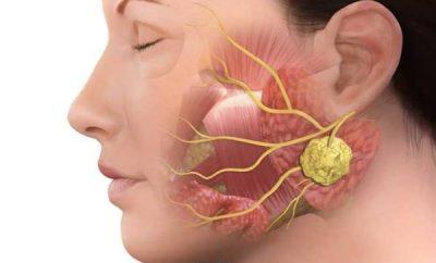 oticanje uvecanje pljuvacnih zlezda