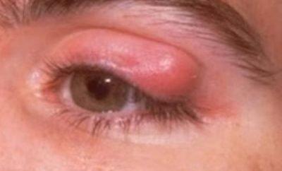 cmicak na oku