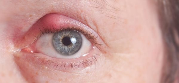 cmicak na oku kod dece
