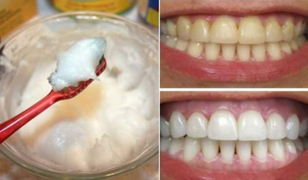 kokosovo ulje i soda bikarbona za zube