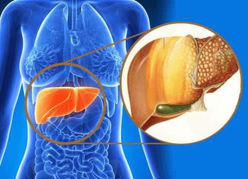 masna jetra prirodno lecenje
