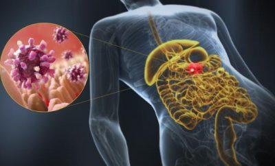 stomacni virus