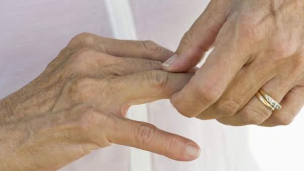 artritis prstiju