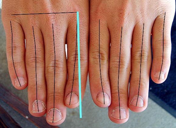 artritis u zglobovima sake