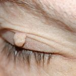fibromi uklanjanje