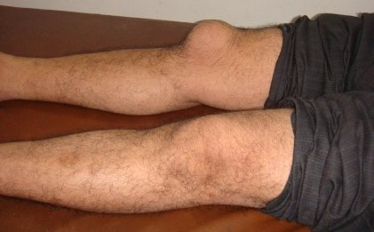 burzitis kolena