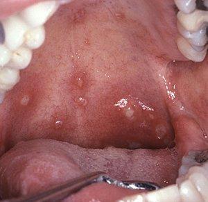 herpes u ustima simptomi