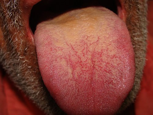 zuti jezik kod odraslih ljudi