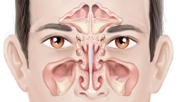 hronicna upala sinusa