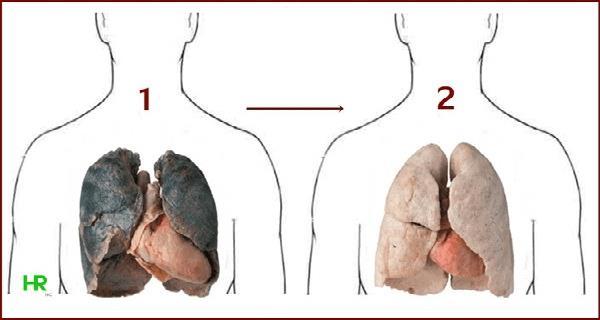 ciscenje krvnih sudova od nikotina