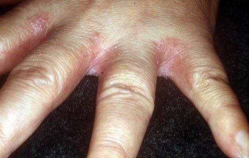gljivice na prstima