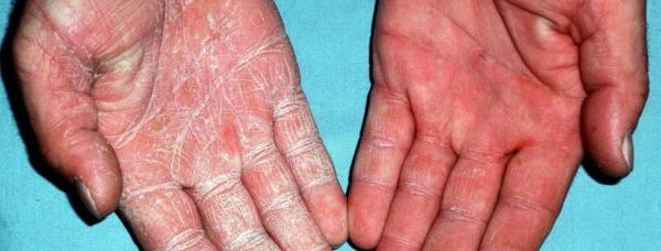 gljivice na rukama simptomi