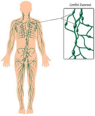 limfni cvorovi