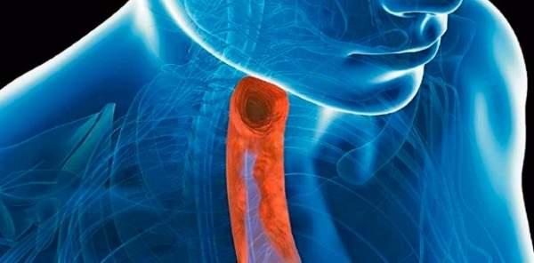 ezofagitis