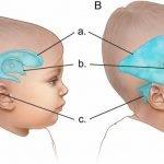 hidrocefalus u trudnoći
