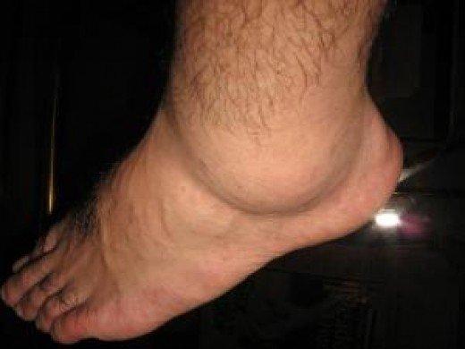Oticanje Nogu I Ruku Edem Za To Su Vam Otečene Noge I