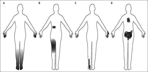 polineuropatija stopala