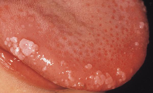humani papiloma virus u ustima)