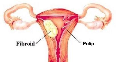 Kako izgleda polip na maternici