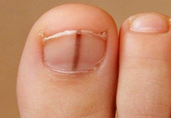 Subungvalni melanom nokta