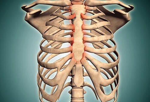kostohondritis simptomi